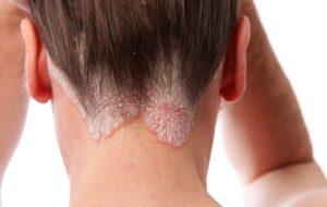 Problemi di pelle? Quali sono le cause?