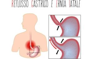 Reflusso gastro-esofageo, ernia iatale, diverticoli: quale il comune denominatore?