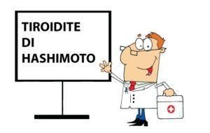 Tiroidite di Hashimoto?